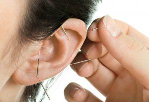 דיקור אוזן